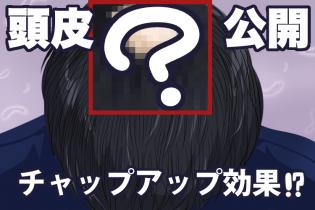 【体験談】チャップアップを使って髪の毛はどうなった?気になる頭皮を公開【3か月経過】