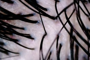 毛穴のつまりは抜け毛を増やす?