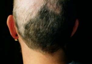 抜毛症という病気について調べてみた。