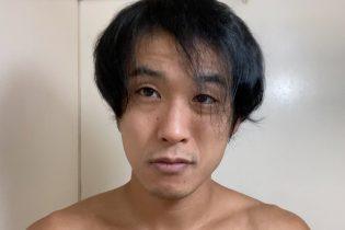 薄毛治療半年報告 〜真夏の薄毛治療〜